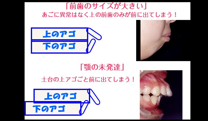 前歯の出っ張りはどうしてなるの?